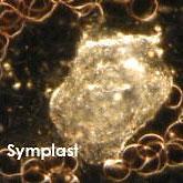 Blutuntersuchung während der Dunkelfeldmikroskopie, Strukturen im Dunkelfeld – Symplast